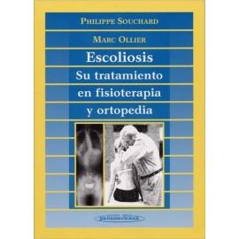 Escoliosis (PANA-00055)