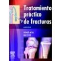 Tratamiento práctico de fracturas (SIE-0039)