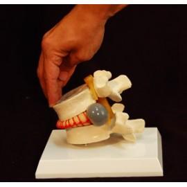 Simulador vertebral con hernia discal.  (VER-00001)