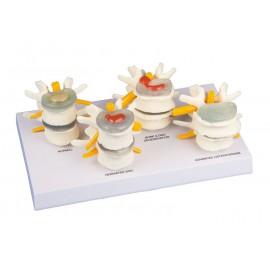 Tipos de discos vertebrales (ER-7576)